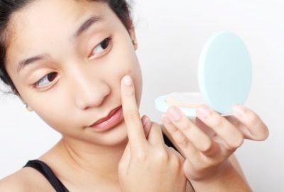 acne breakout - renewal aesthetics blog