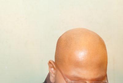 asian-hair-loss-and-treatments-renewal-aesthetics